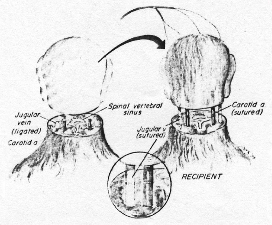 Depiction of the first total cephalosomatic exchange in a monkey (from White et al. 1971)