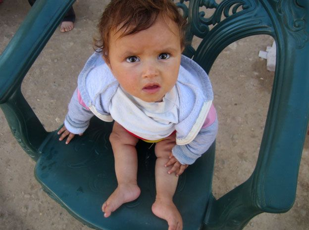 A child in eastern Syria with legs paralysed because of polio