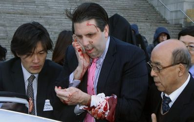 Ambassador to South Korea was injured by a man wielding a razor in Seoul, and his assailant was immediately detained.