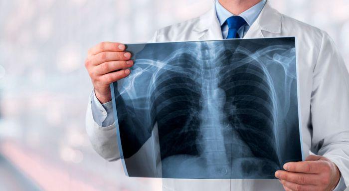 Өткен тәулікте 242 адамнан пневмония анықталды
