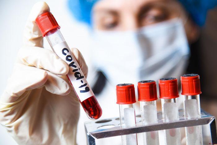 Қазақстанда өткен тәулікте 45 адамда коронавирус індеті расталды