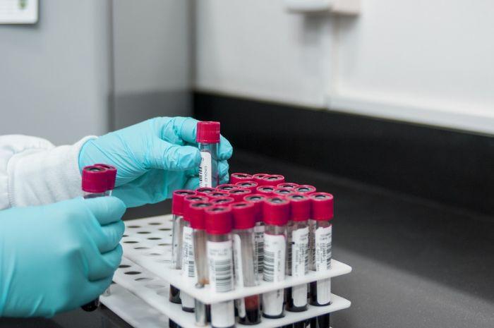Қазақстанда өткен тәулікте 1 180 адамның коронавирус жұқтырғаны анықталды