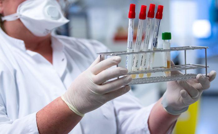 Өткен тәулікте 2443 адамда коронавирус індеті анықталды