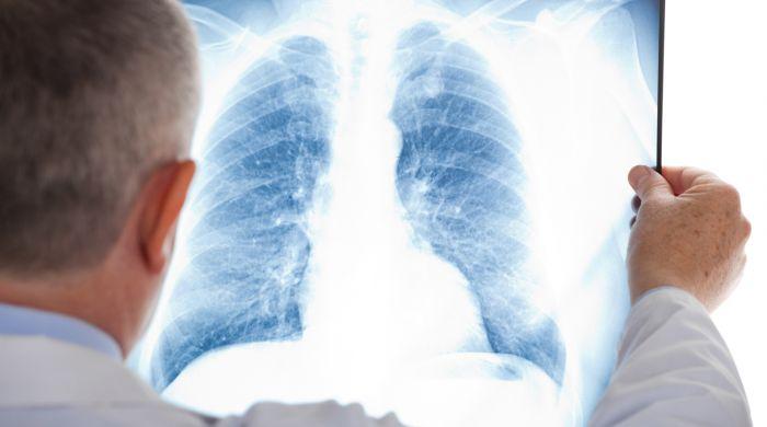 У 28 тысяч казахстанцев выявлена пневмония при отрицательном ПЦР-тесте на COVID-19