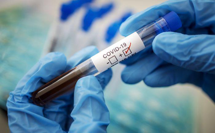 65 случаев COVID-19 выявлено за сутки в Казахстане