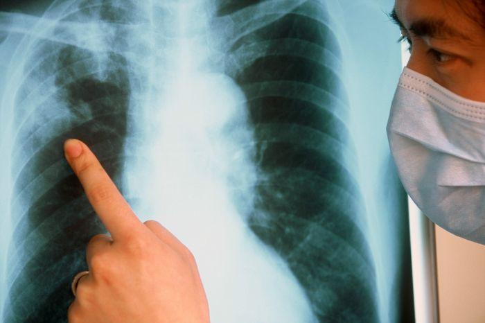 118 человек заболели пневмонией за сутки