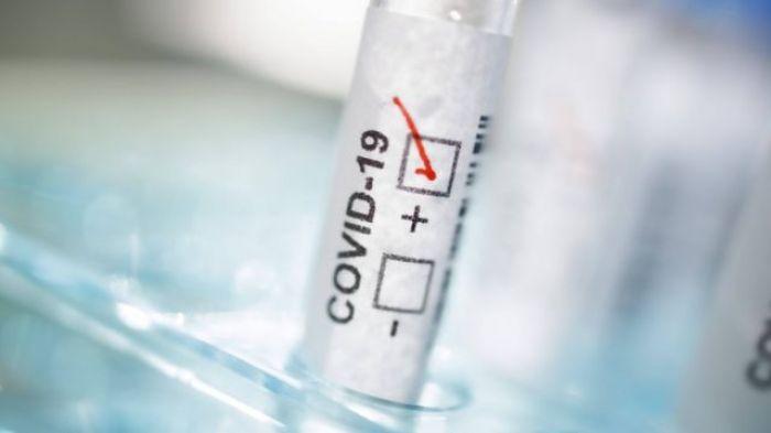 1584 случаев коронавируса выявлено за сутки в Казахстане