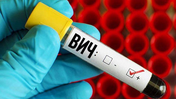 В Казахстане на 43% возросла заболеваемость ВИЧ среди молодежи