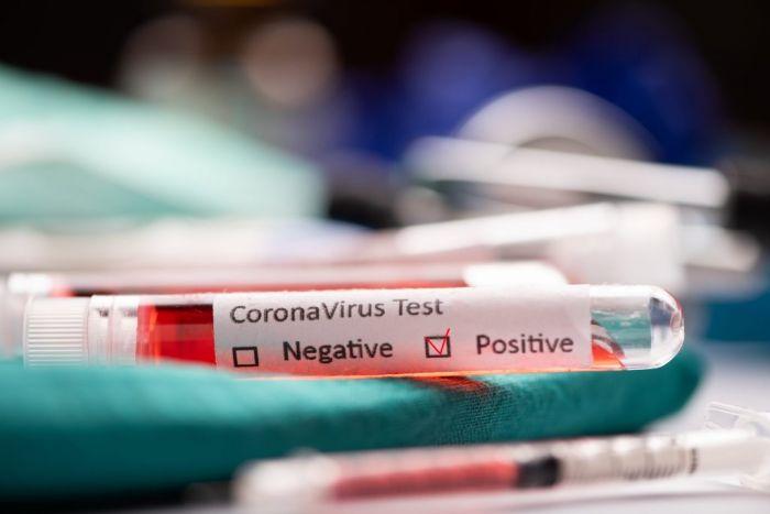 Новые данные по коронавирусу и пневмонии в Казахстане